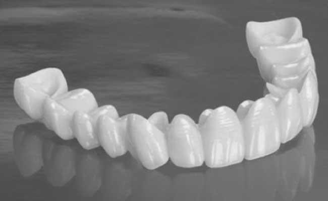 כתר זירקוניה בשיניים